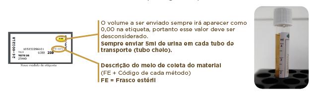 PASSO A PASSO PARA ALÍQUOTA DE URINA