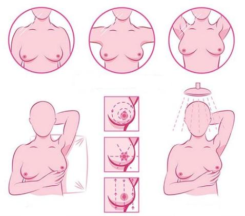 Câncer de Mama, Prevenção e Auto exame