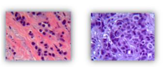 Anatomia Patológica no Câncer de Mama
