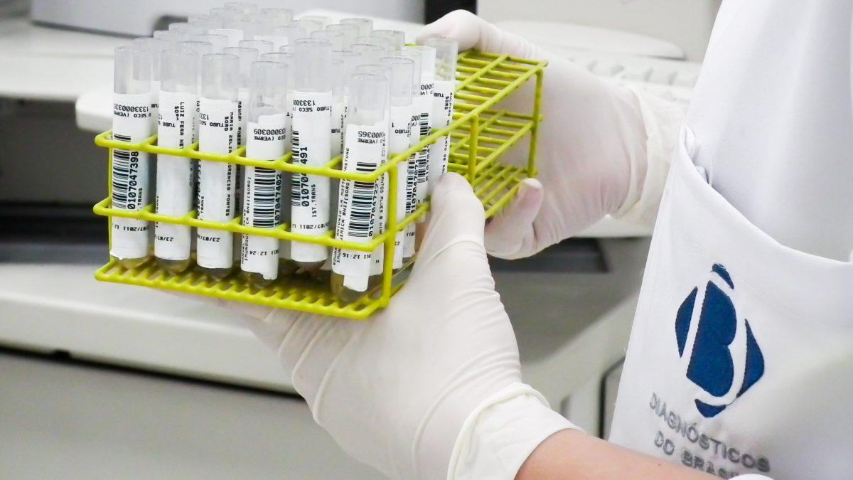 Soroteca do Diagnósticos do Brasil evita cerca de 14 mil recoletas mensais | Diagnósticos do Brasil