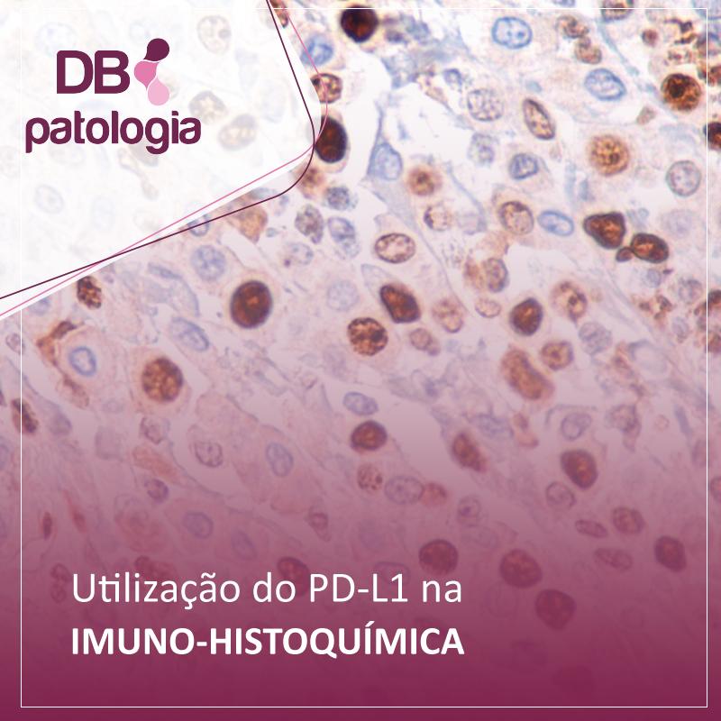 Utilização do PD-L1 na Imuno-histoquímica  | Diagnósticos do Brasil