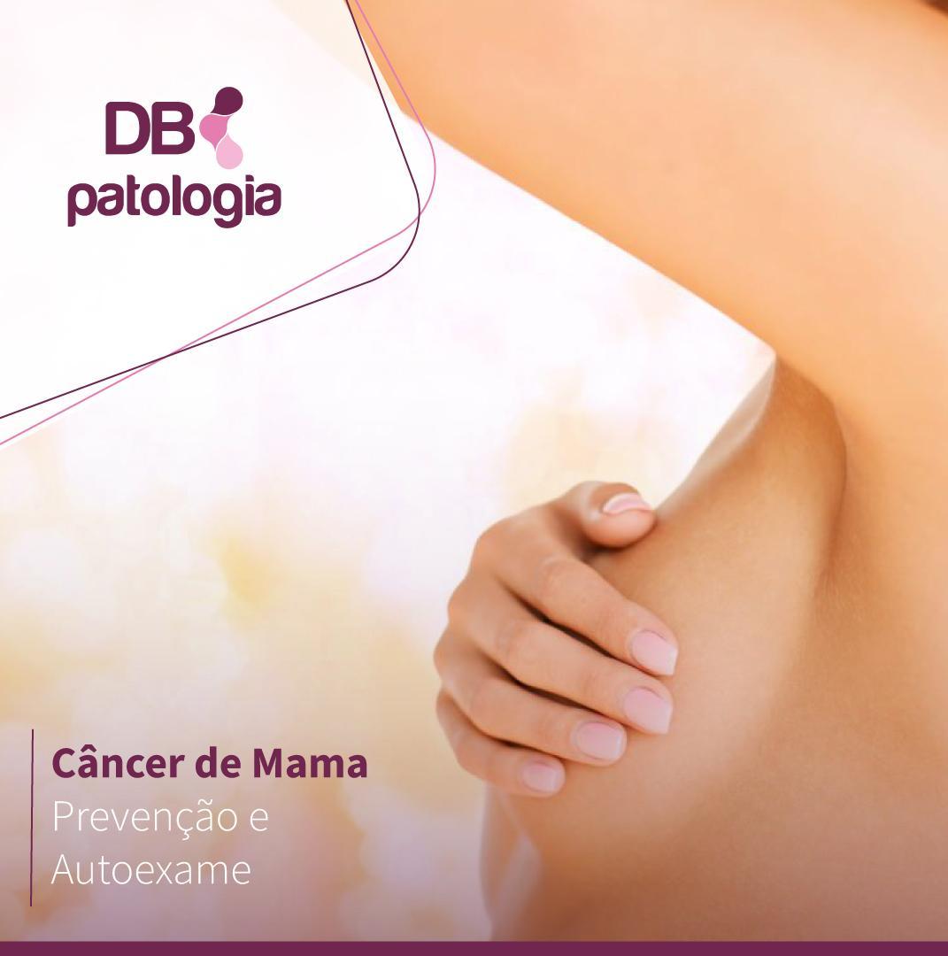 Câncer de Mama, Prevenção e Autoexame   Diagnósticos do Brasil