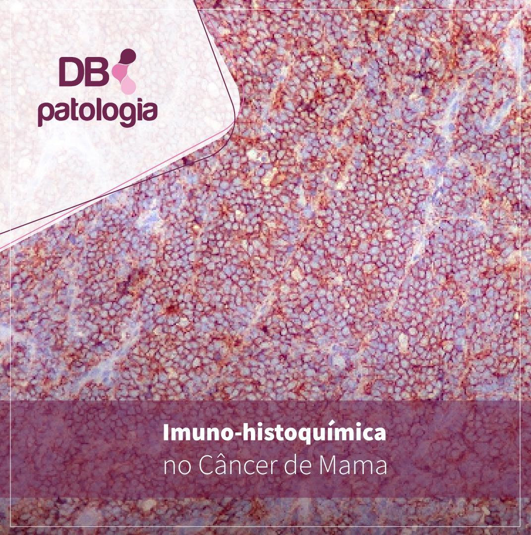 Imuno-histoquímica no Câncer de Mama | Diagnósticos do Brasil