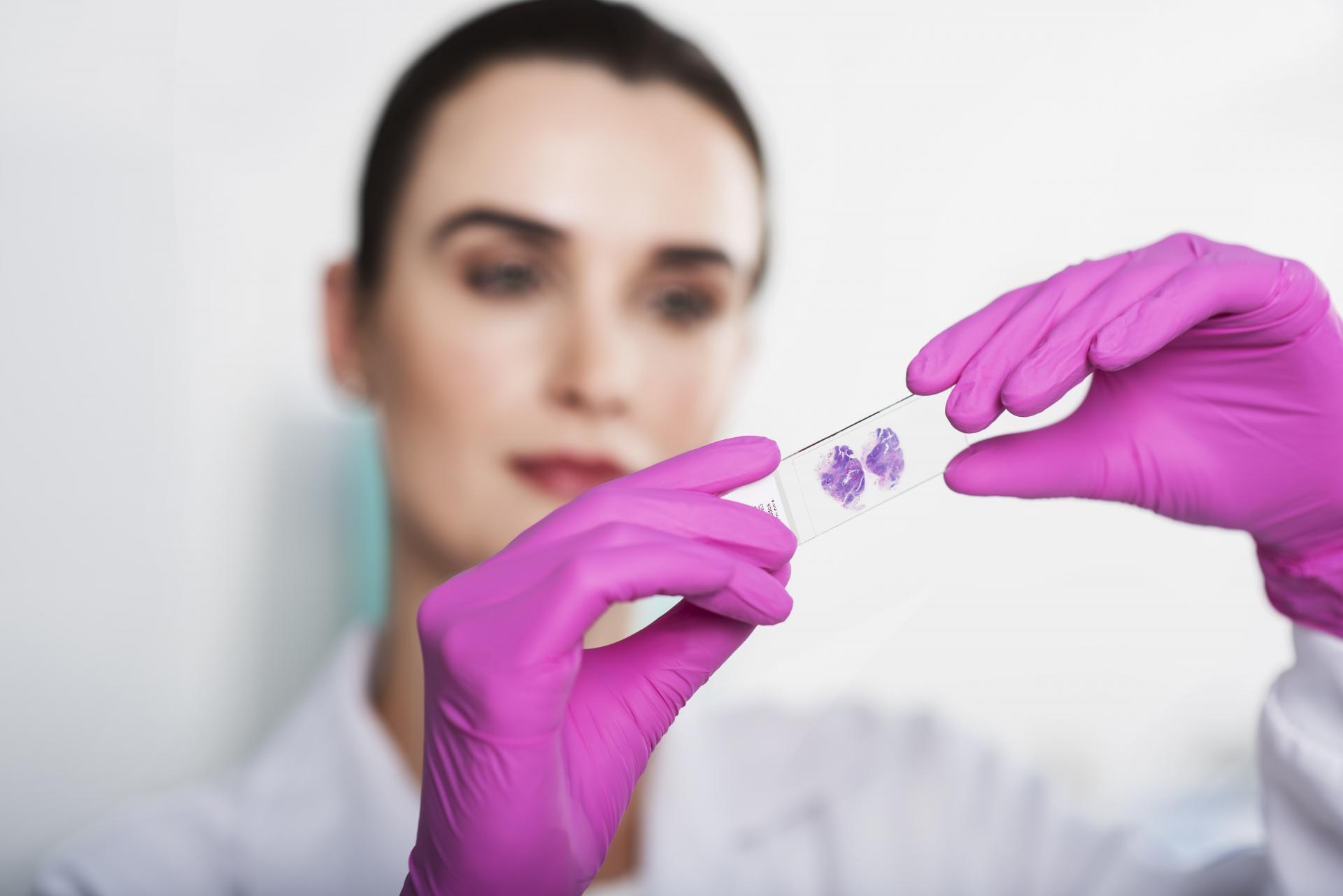 Estudo imuno-histoquímico para BAP1 – Quando utilizar?  | Diagnósticos do Brasil