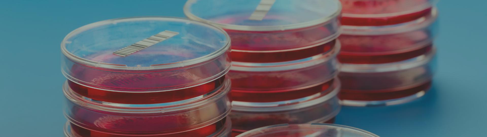 MICROBIOLOGIA DO DIAGNÓSTICOS DO BRASIL É DESTAQUE NO MERCADO LABORATORIAL | Diagnósticos do Brasil