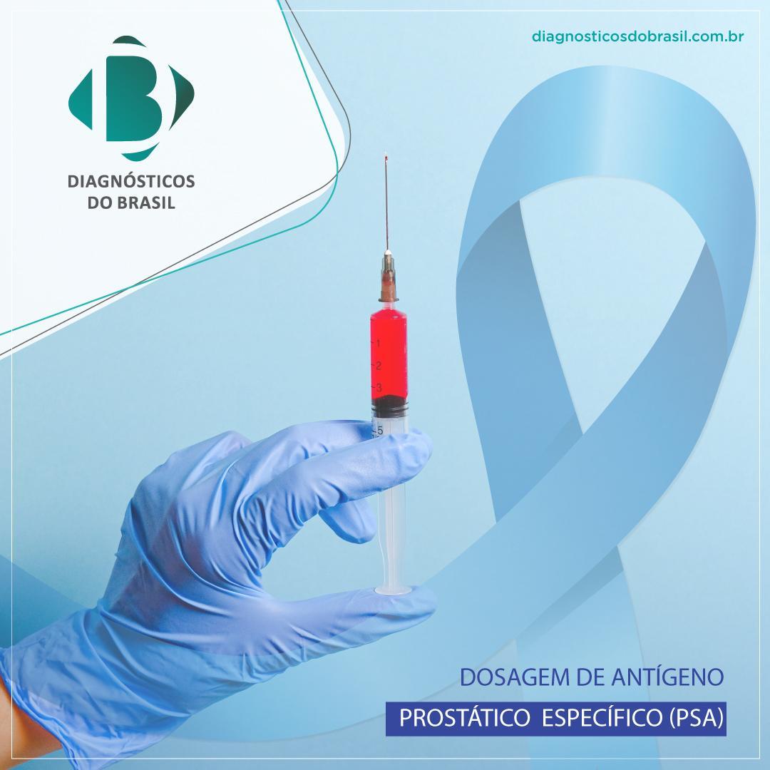EXAMES PREVENTIVOS CONTRA O CÂNCER DE PRÓSTATA TÊM QUEDA NAS SOLICITAÇÕES | Diagnósticos do Brasil