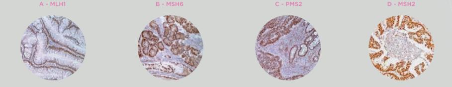 Instabilidade de Microssatélites (MSI) e Disfunção dos Genes de Reparo (dMMR)