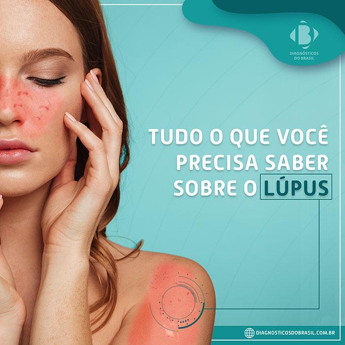 Tudo o que você precisa saber sobre o lúpus | Diagnósticos do Brasil