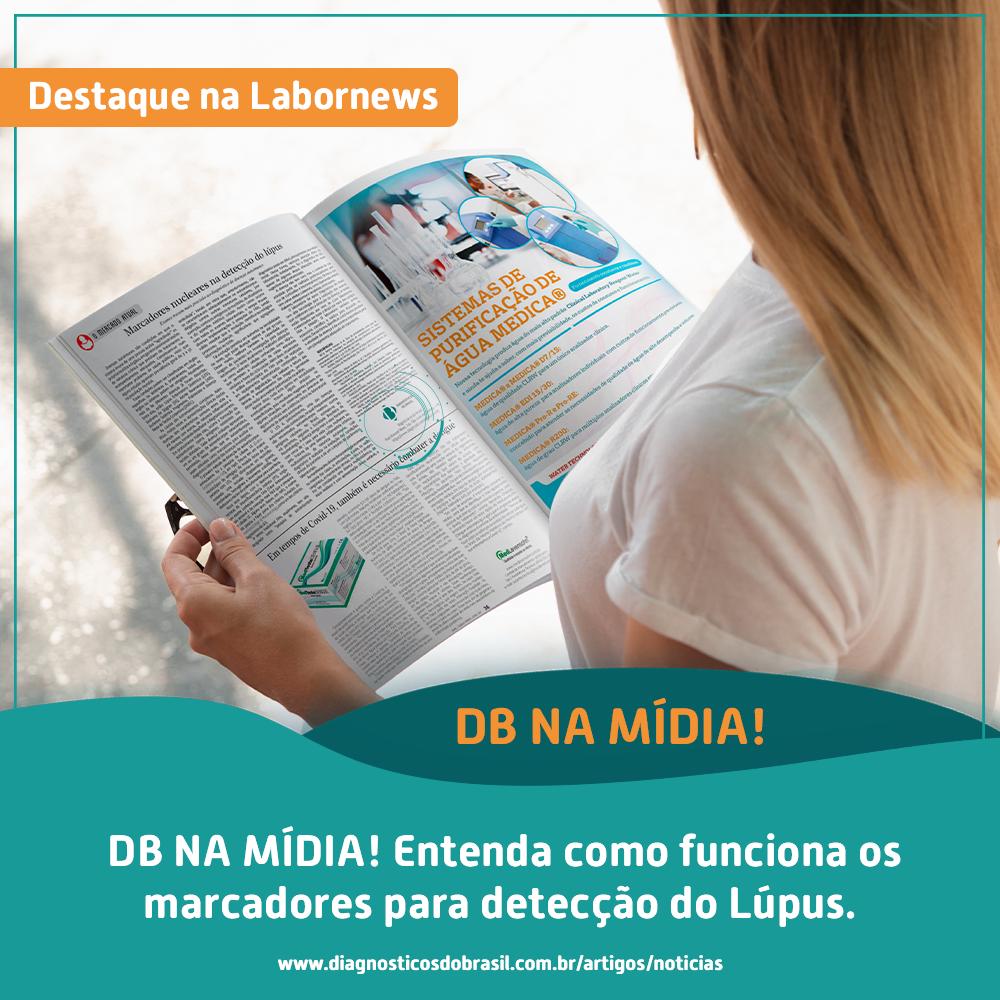 MARCADORES NUCLEARES NA DETECÇÃO DO LÚPUS   Diagnósticos do Brasil