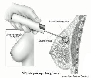 mama_biopsia_agulhagrossa